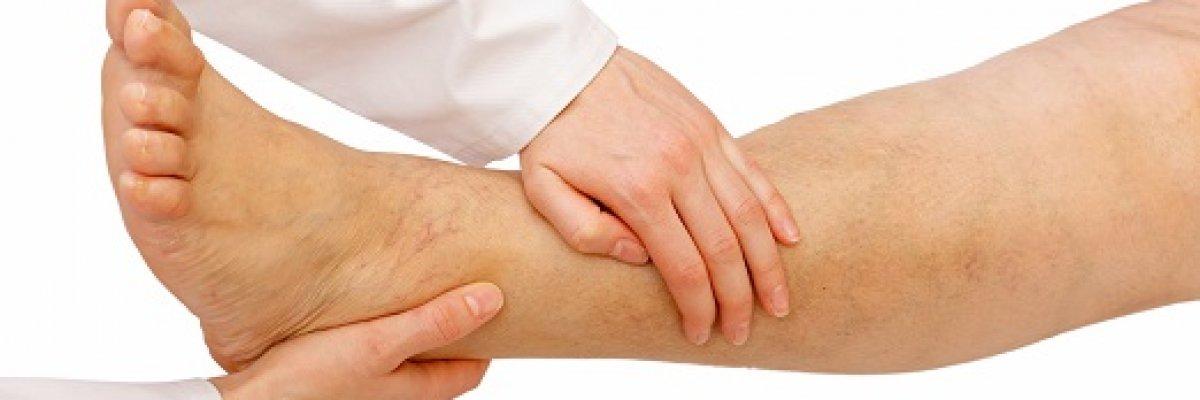 Cukorbeteg és bizsereg a lába? Ez lehet az oka!