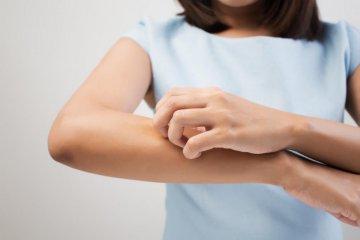 Száraz és hámlik a bőre? Cukorbetegség is okozhatja