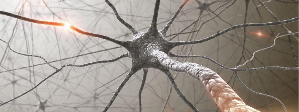 Neurológia - neuropátia