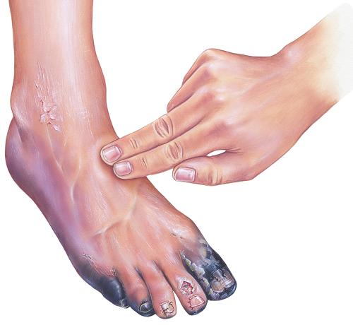 vörös foltok a cukorbetegség lábszárán